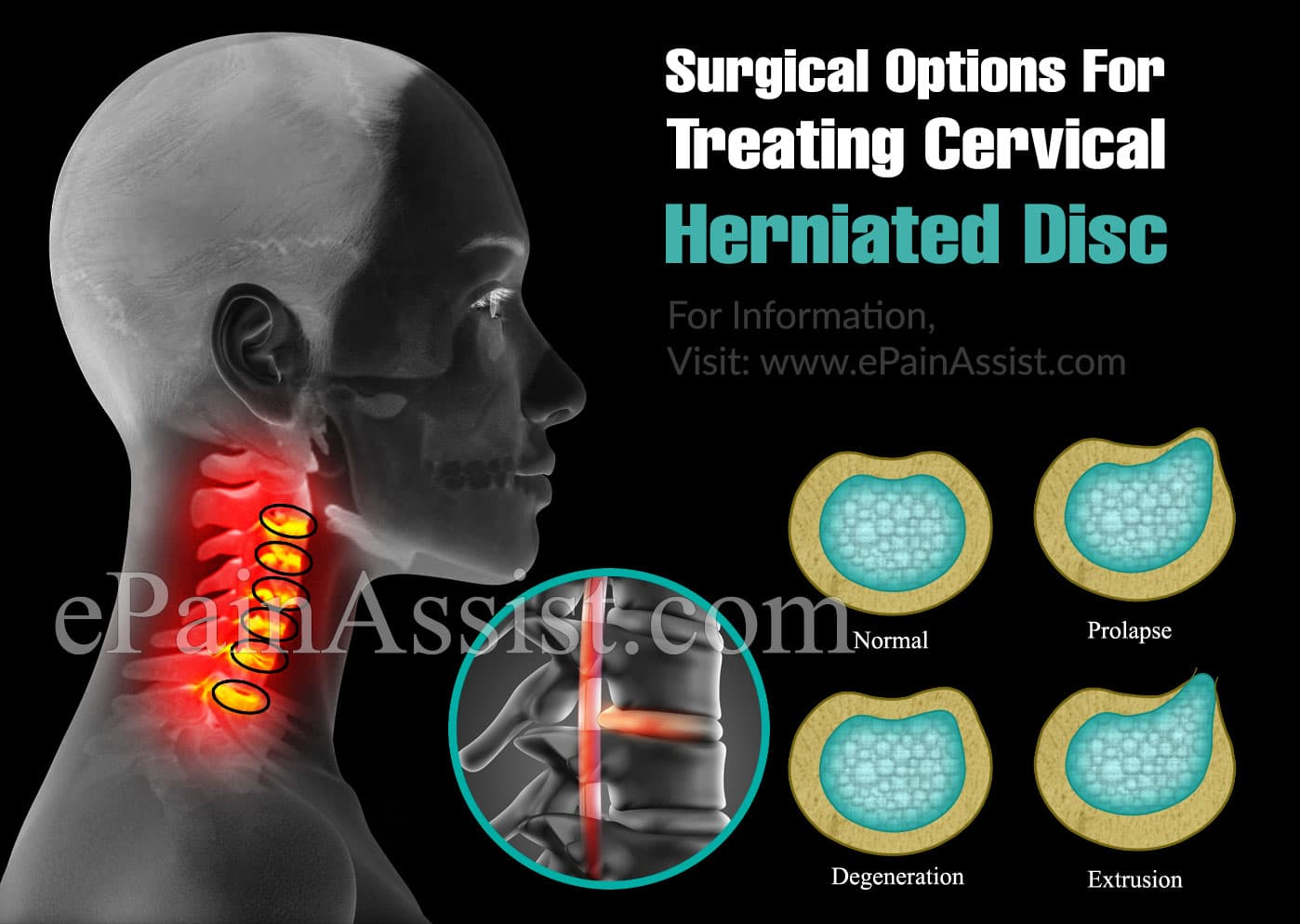 Surgical Options For Treating Cervical Herniated Disc