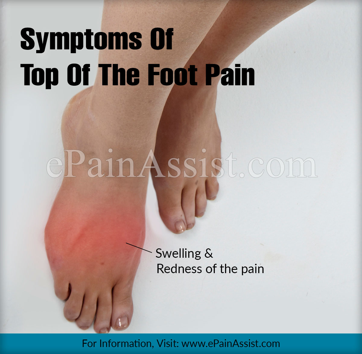 Symptoms Of Top Of The Foot Pain