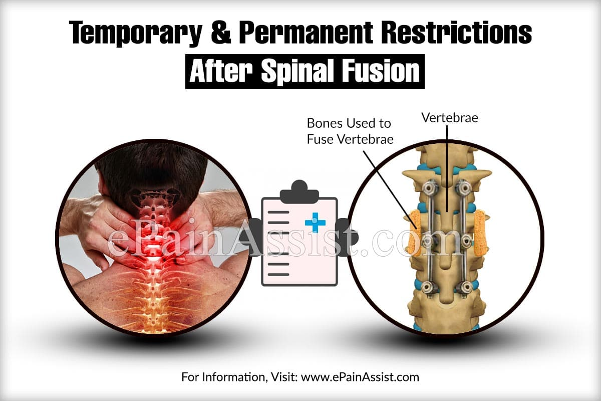 Temporary & Permanent Restrictions After Spinal Fusion