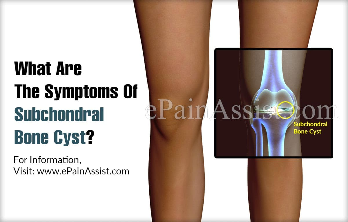 What Are The Symptoms Of Subchondral Bone Cyst?