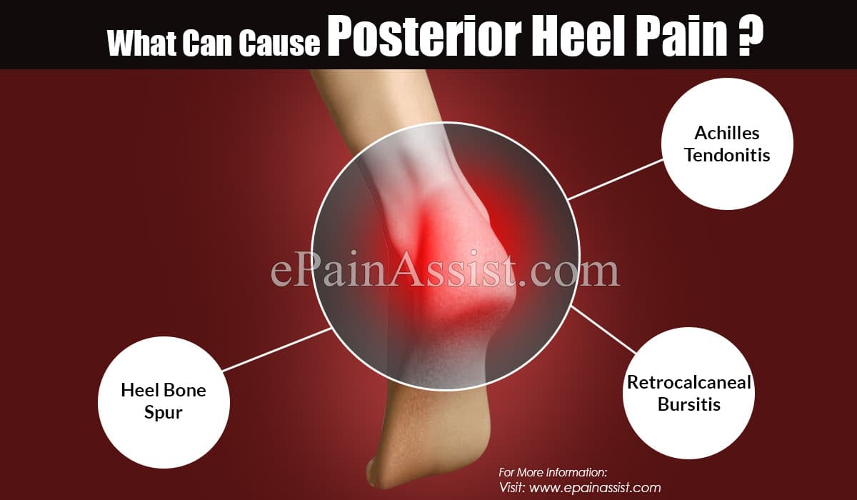 What Can Cause Posterior Heel Pain ?