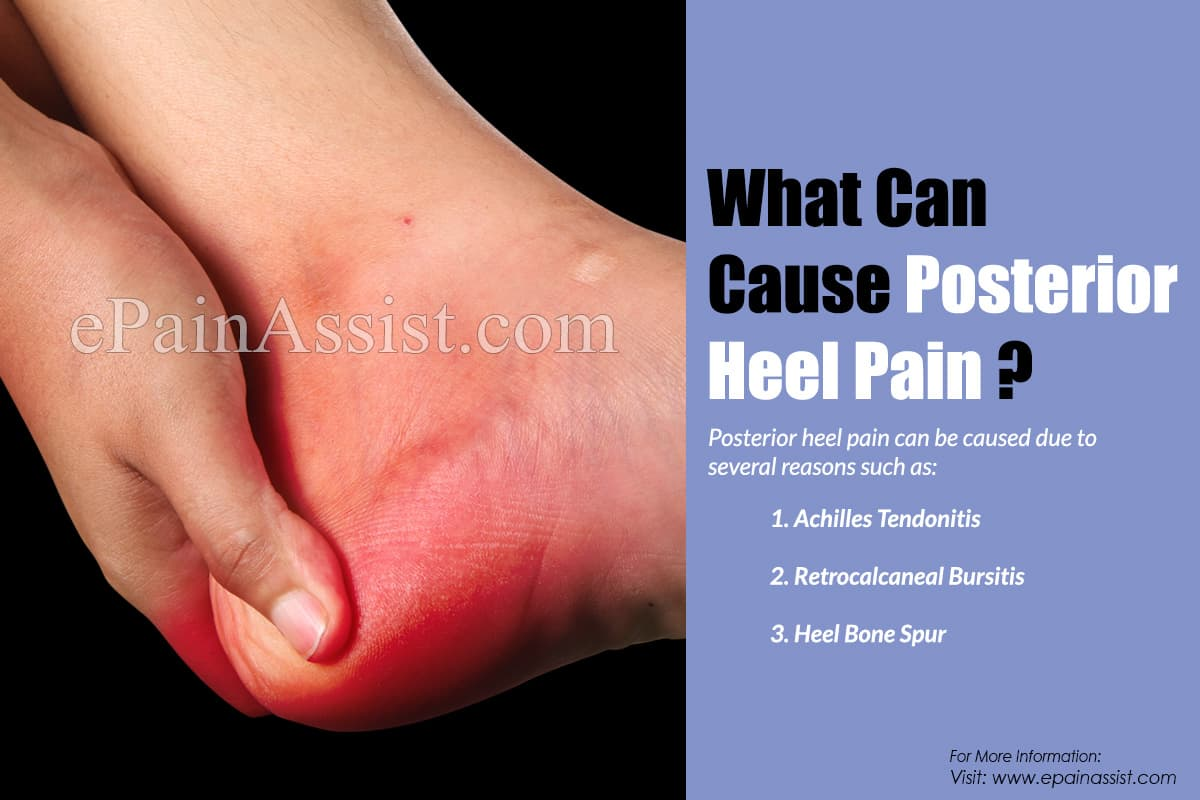 What Can Cause Posterior Heel Pain & How is it Treated?