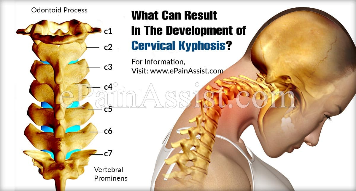 What Can Result In The Development of Cervical Kyphosis?