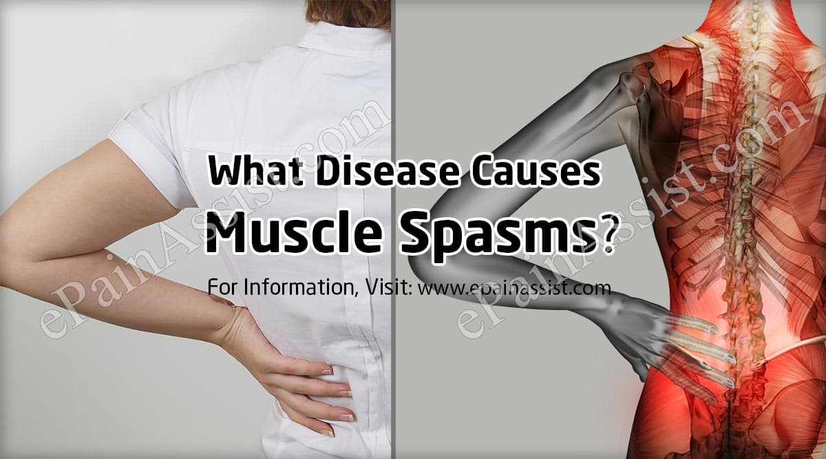 What Disease Causes Muscle Spasms?