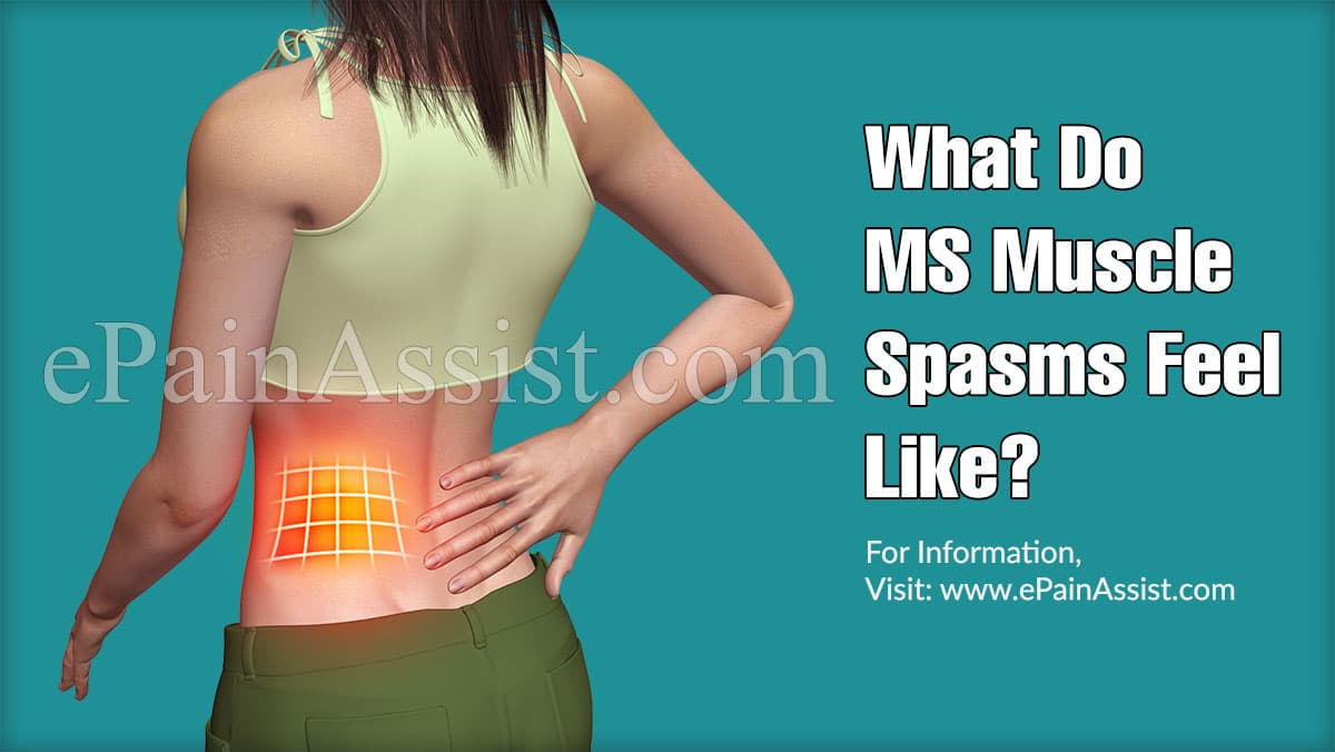 What Do MS Muscle Spasms Feel Like?