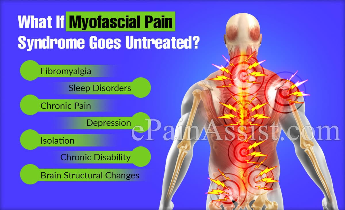 What If Myofascial Pain Syndrome Goes Untreated?