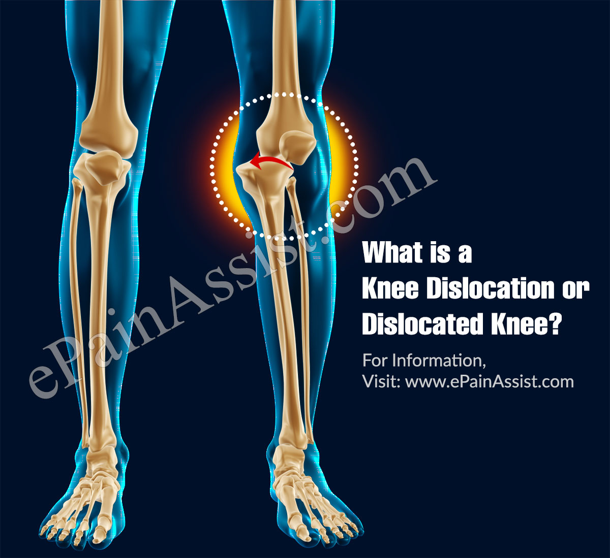 What is a Knee Dislocation or Dislocated Knee?