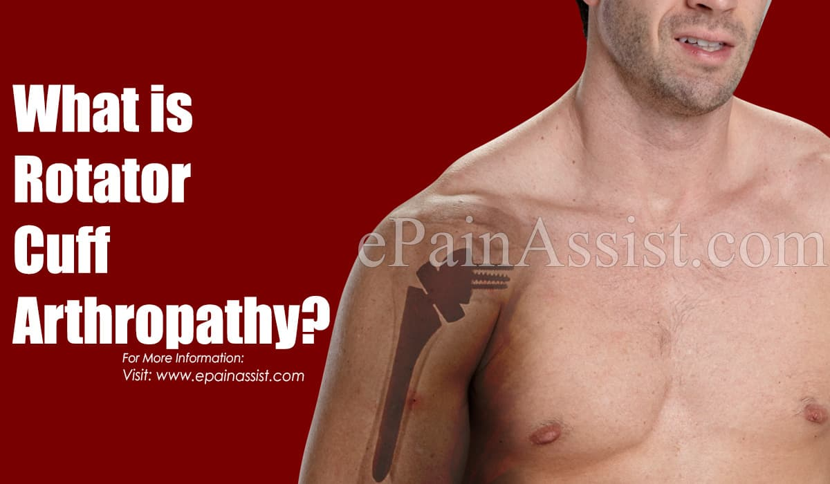 What is Rotator Cuff Arthropathy?