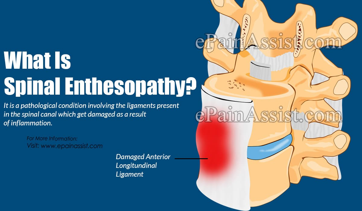 What Is Spinal Enthesopathy?