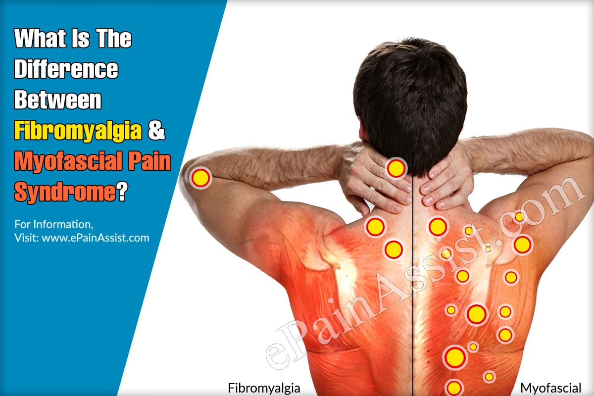 What Is The Difference Between Fibromyalgia And Myofascial Pain Syndrome?