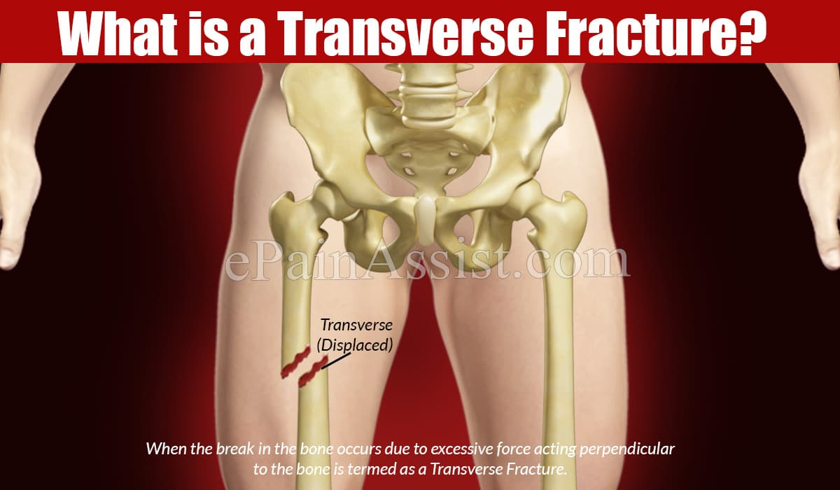 What is a Transverse Fracture?