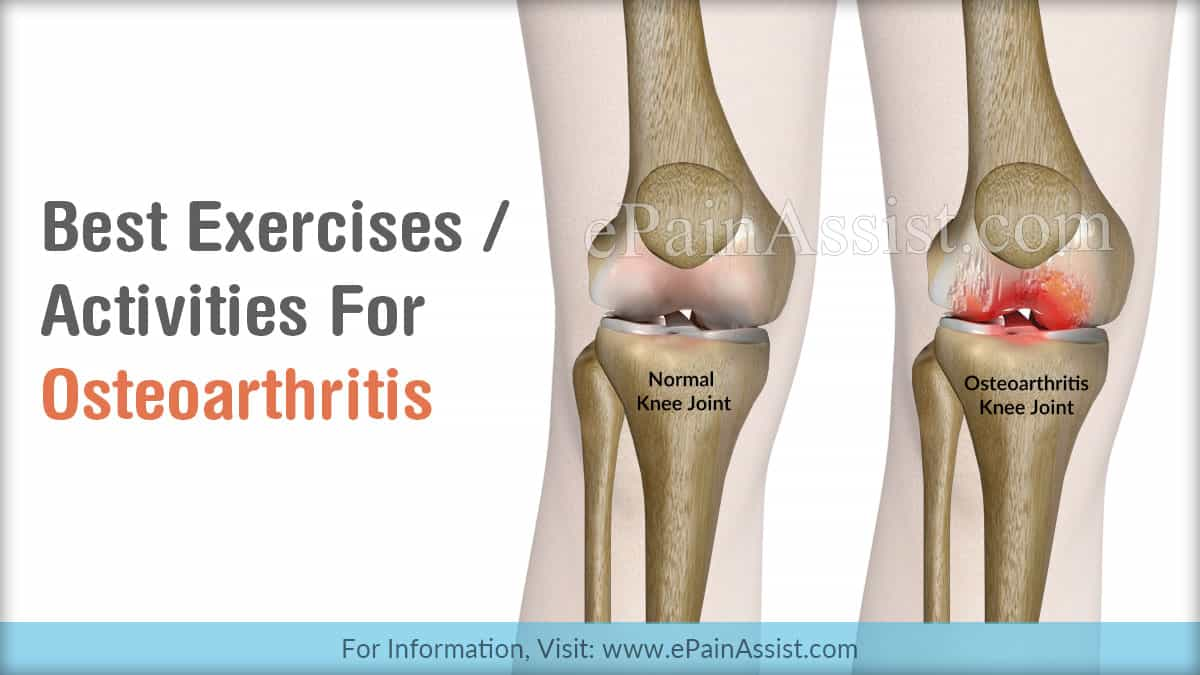 Benefits Of Knee And Hip Exercises For Osteoarthritis