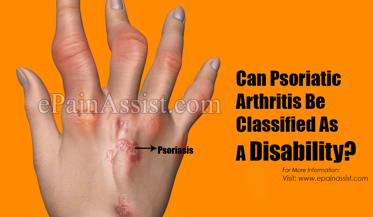 Can Psoriatic Arthritis Be Classified As A Disability?