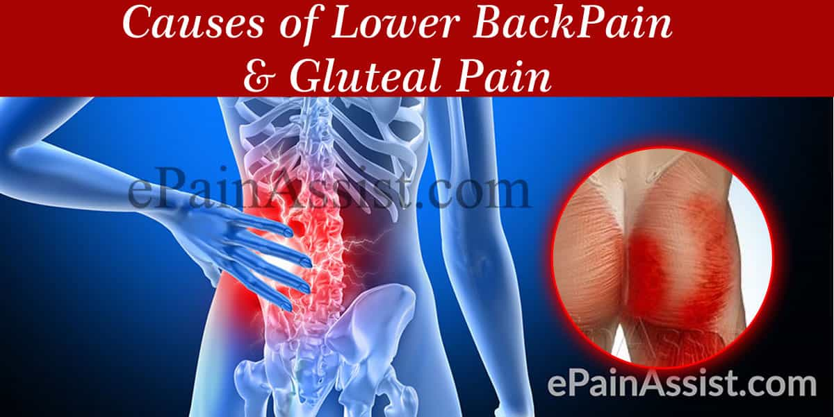 Causes of Lower Back Pain & Gluteal Pain