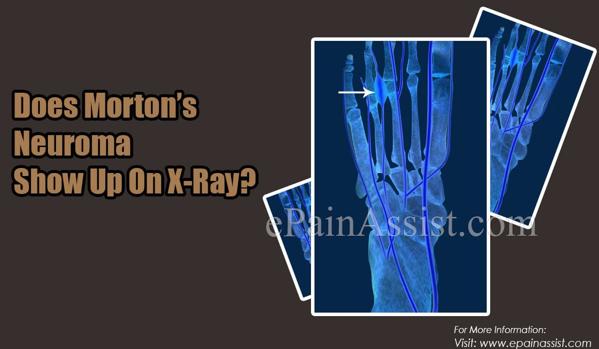 Does Morton's Neuroma Show Up On X-Ray?