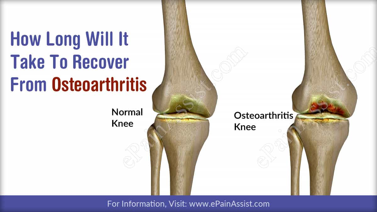 How Long Will It Take To Recover From Osteoarthritis?