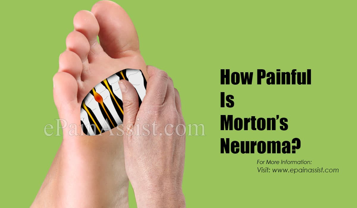 How Painful Is Morton's Neuroma?
