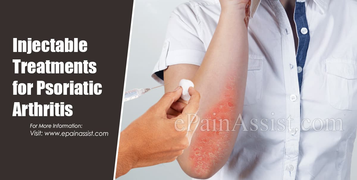 Injectable Treatments for Psoriatic Arthritis