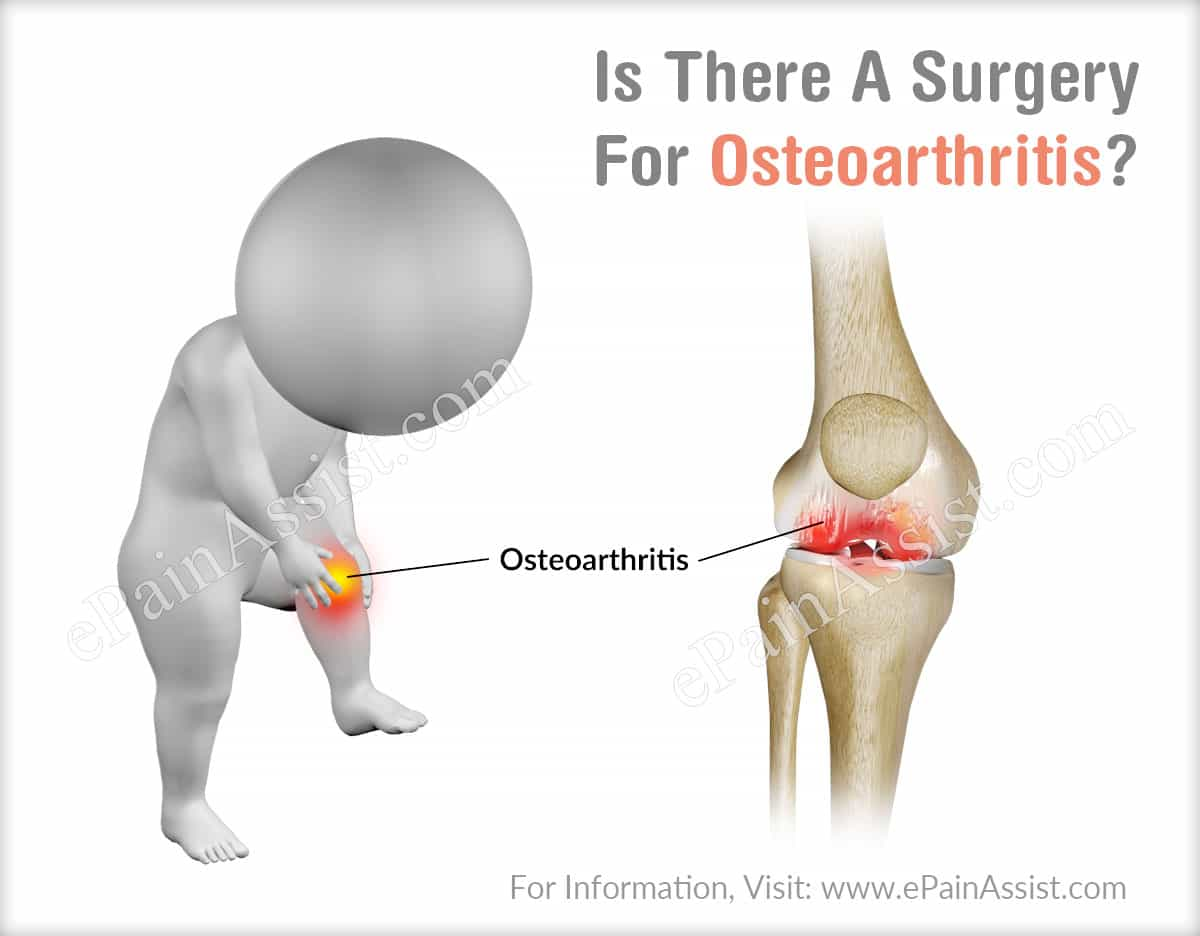 Is Surgery Required For Osteoarthritis?