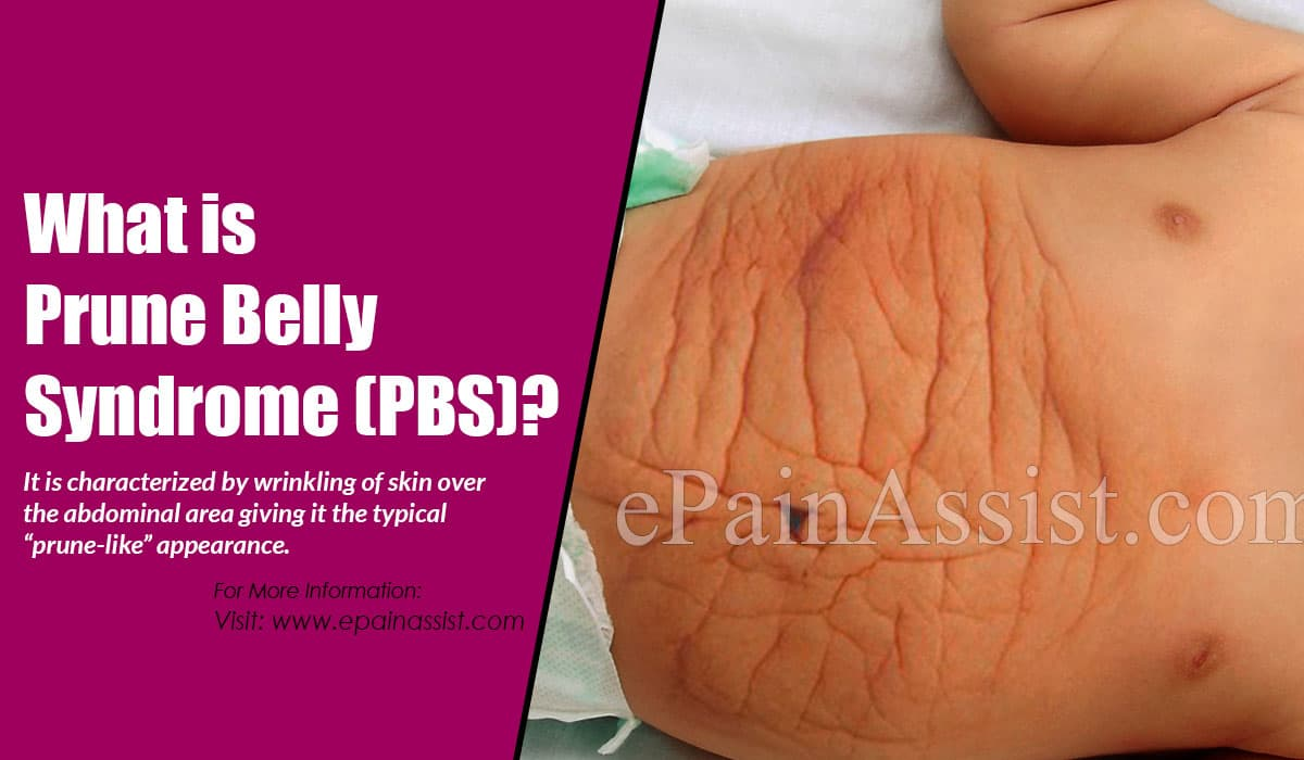 What is Prune Belly Syndrome (PBS)?