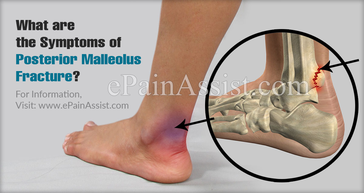 What are the Symptoms of Posterior Malleolus Fracture?