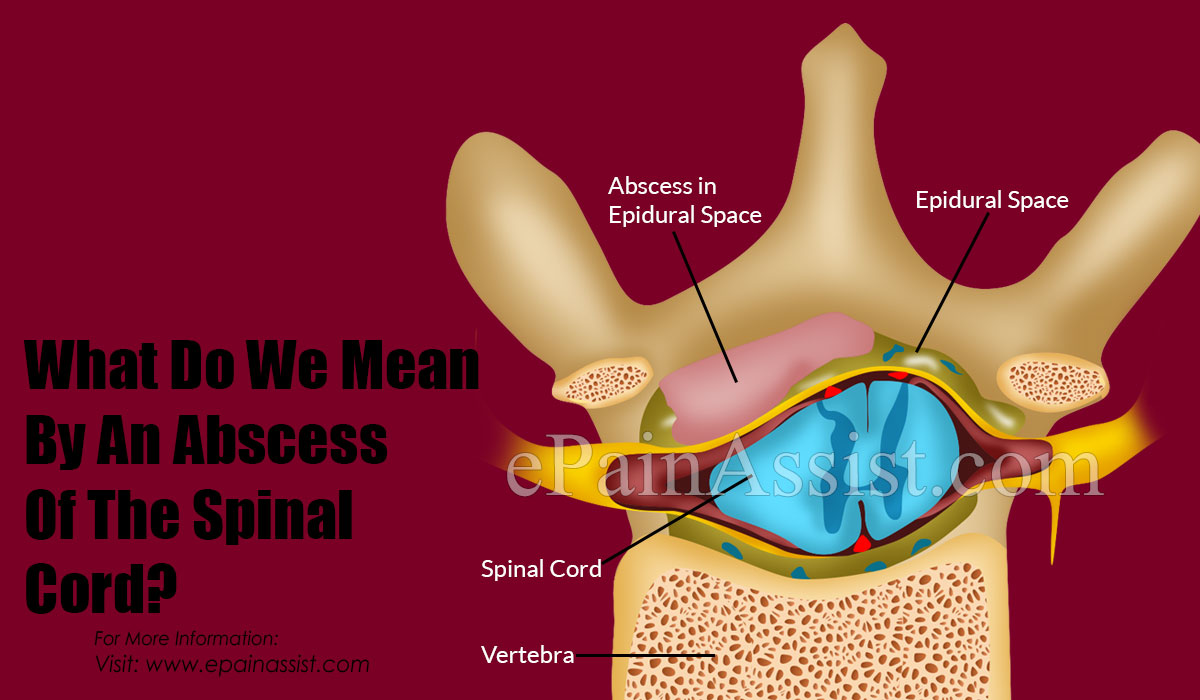 What Can Cause An Abscess On The Spinal Cord?