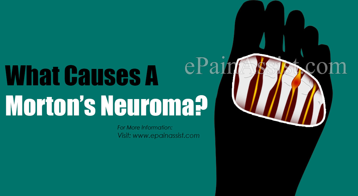 What Causes A Morton's Neuroma?