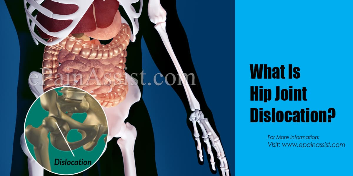 What Is Hip Joint Dislocation?