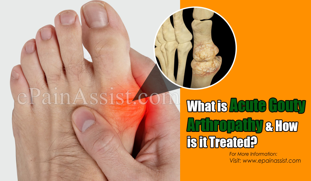 What is Acute Gouty Arthropathy & How is it Treated?