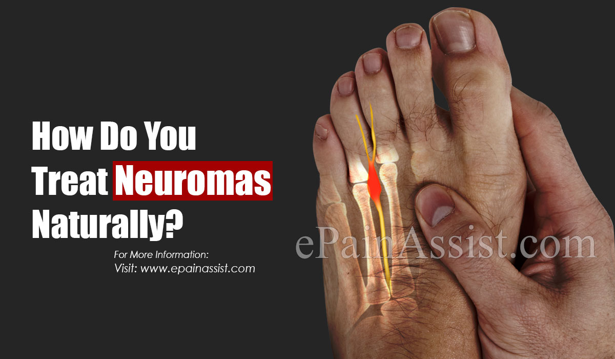 What Is The Major Cause Of Neuroma?