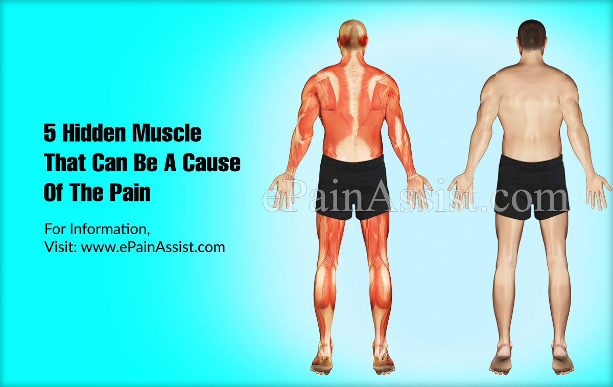 5 Hidden Muscle That Can Be A Cause Of The Pain