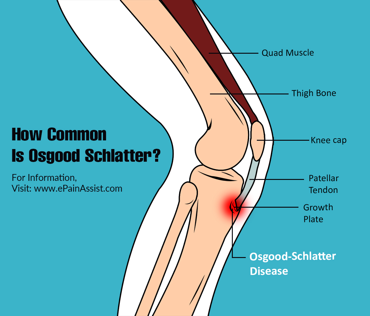 How Common Is Osgood Schlatter Or Is It A Rare Disease?