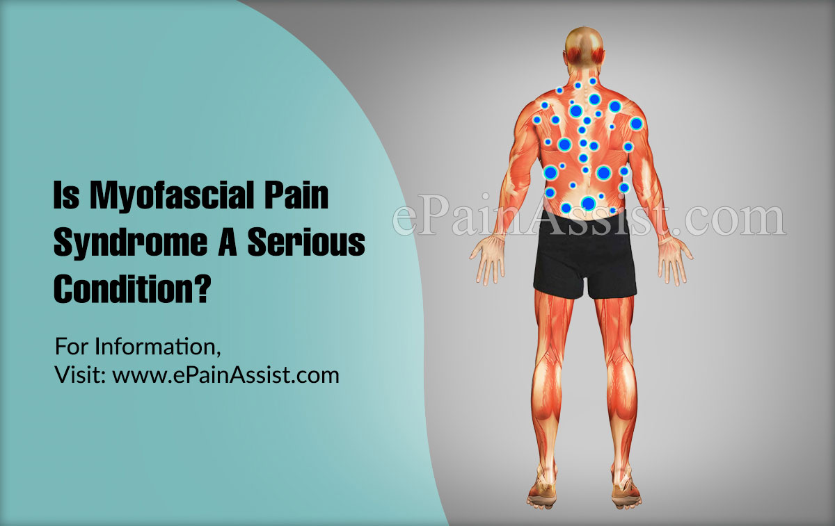 Is Myofascial Pain Syndrome A Serious Condition?