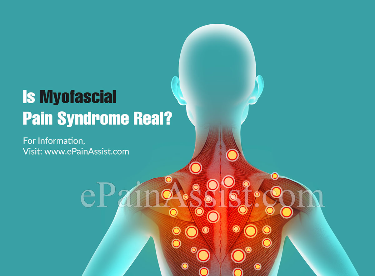 Is Myofascial Pain Syndrome Real?