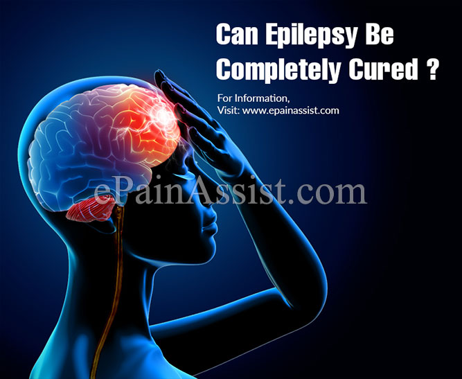 Can Epilepsy Be Completely Cured?