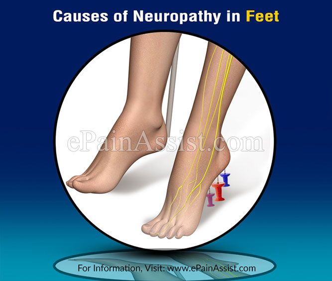 Causes of Neuropathy in Feet