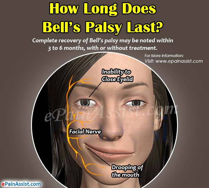 Facial bells palsy
