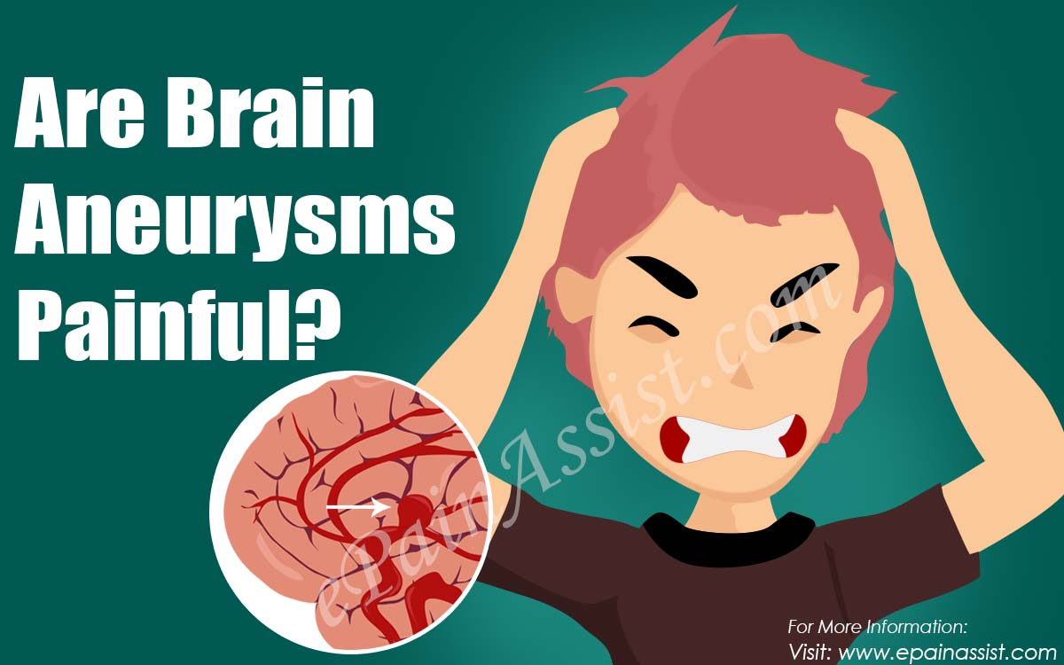 Are Brain Aneurysms Painful?