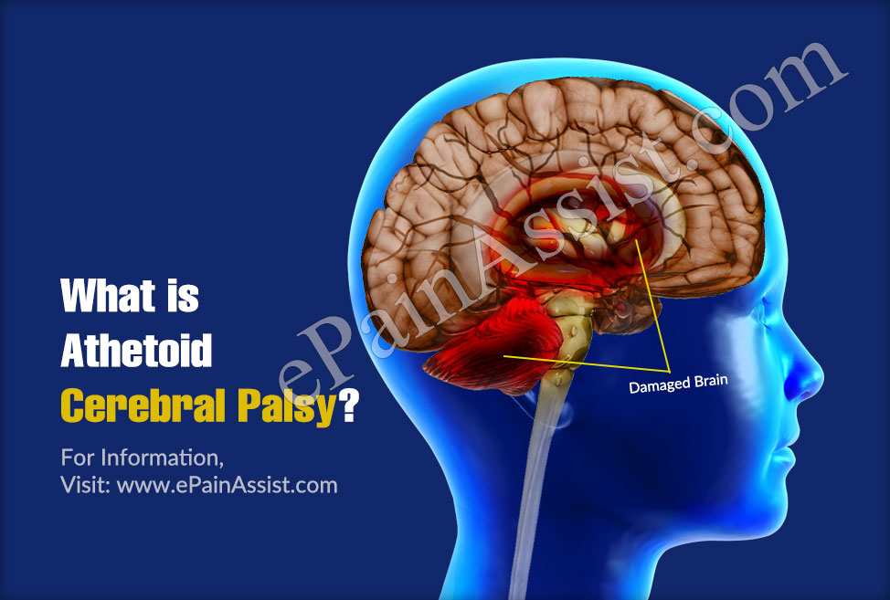 What is Athetoid Cerebral Palsy?
