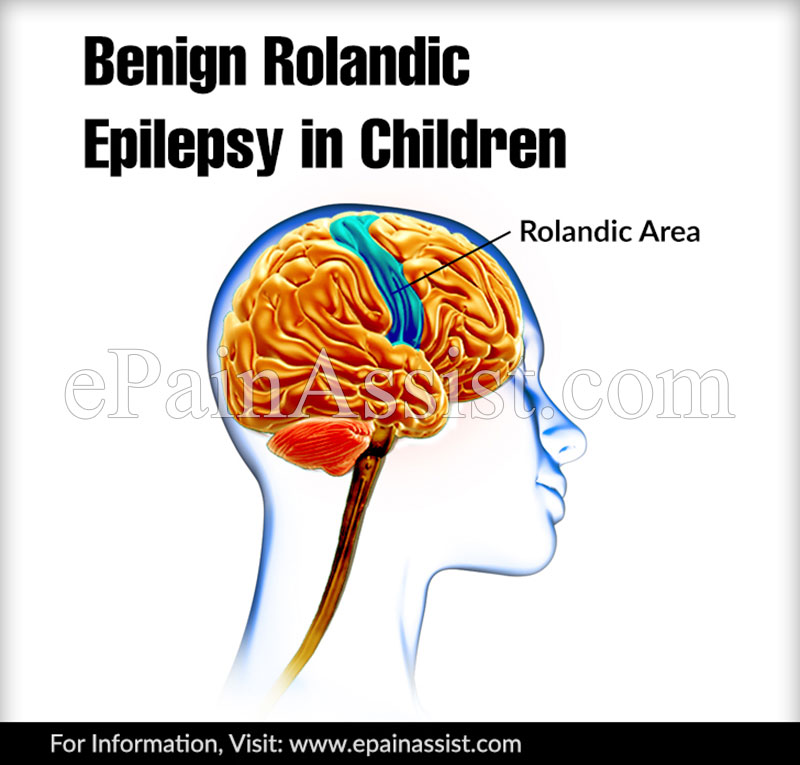 Benign Rolandic Epilepsy in Children