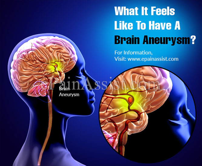 What It Feels Like To Have A Brain Aneurysm, Know its Treatment & Recovery