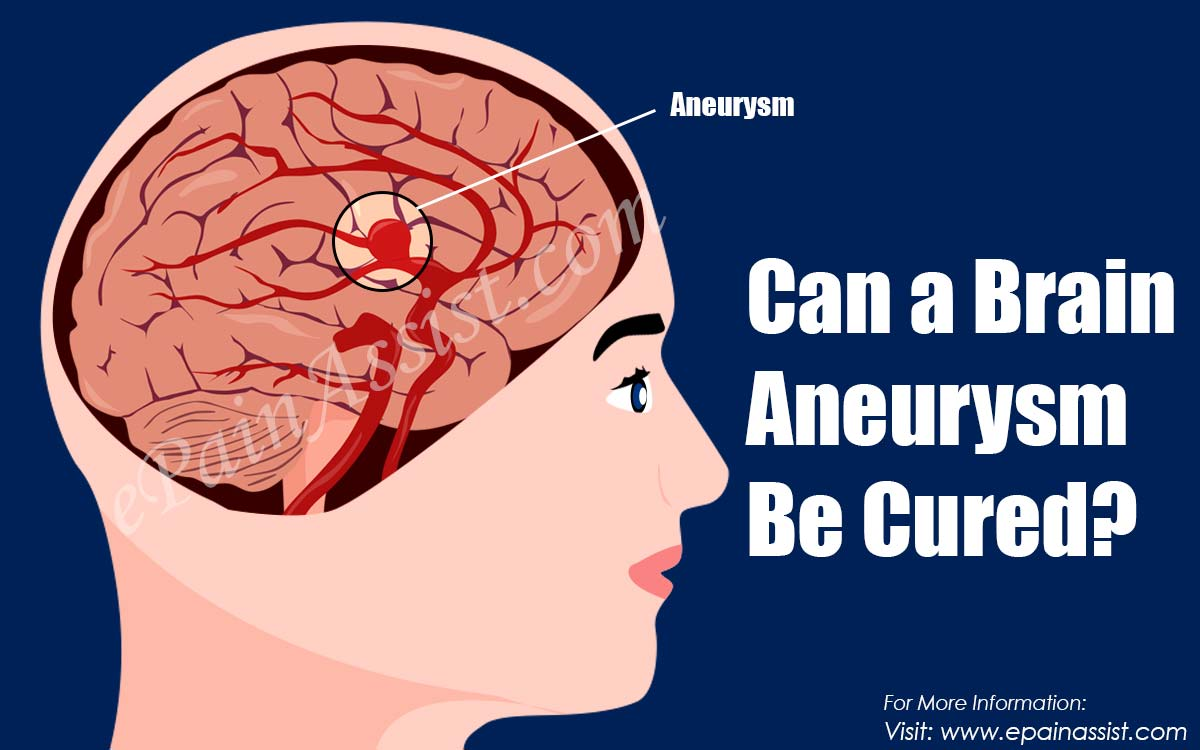 Can a Brain Aneurysm Be Cured?