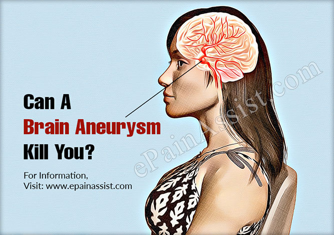 Can A Brain Aneurysm Kill You?