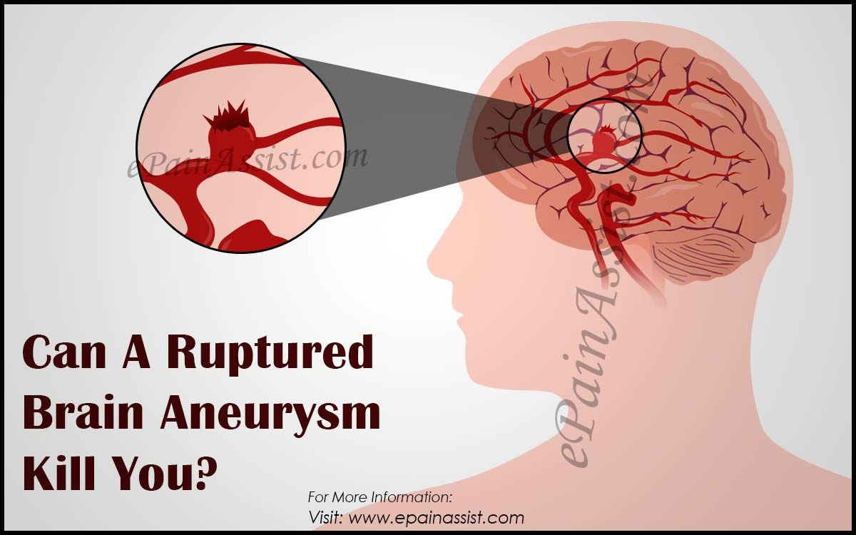 Can A Ruptured Brain Aneurysm Kill You?