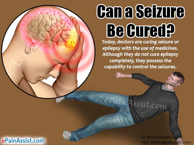 Can a Seizure Be Cured?