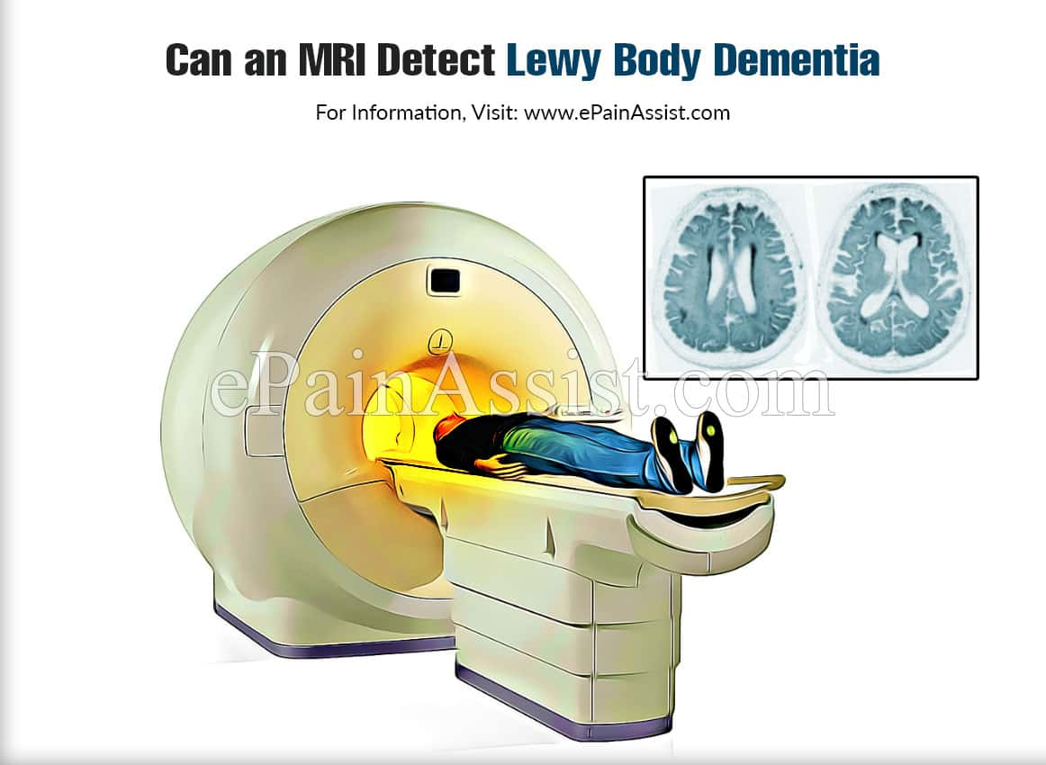 Can an MRI Detect Lewy Body Dementia?