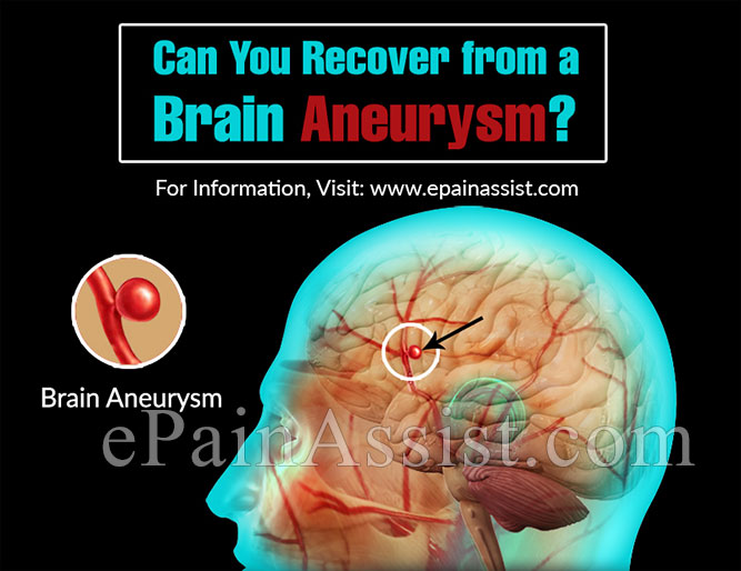 Can You Recover from a Brain Aneurysm?