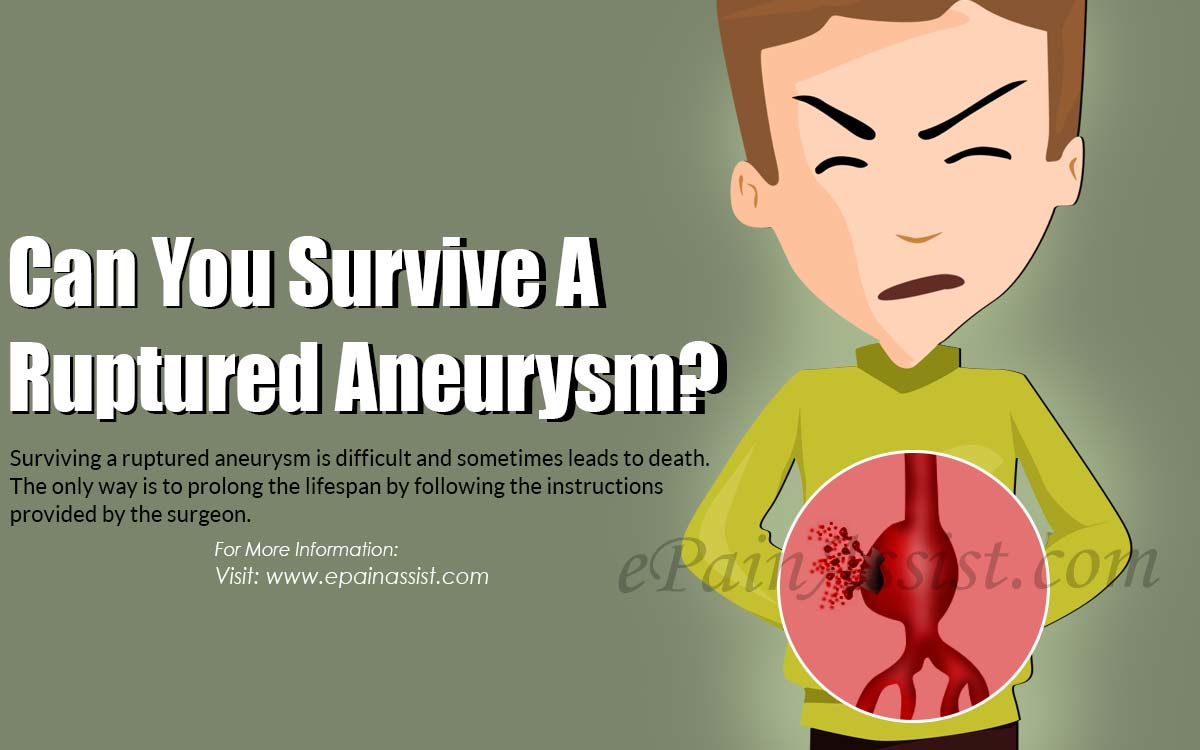 Can You Survive A Ruptured Aneurysm?