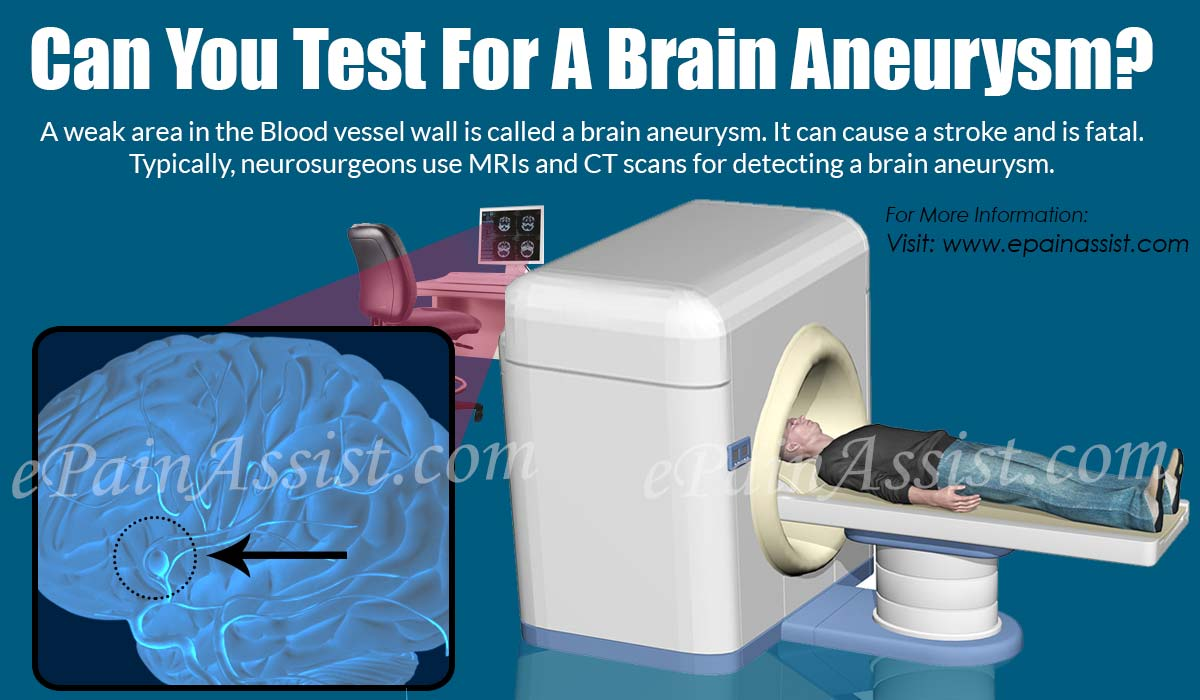 Can You Test For A Brain Aneurysm?