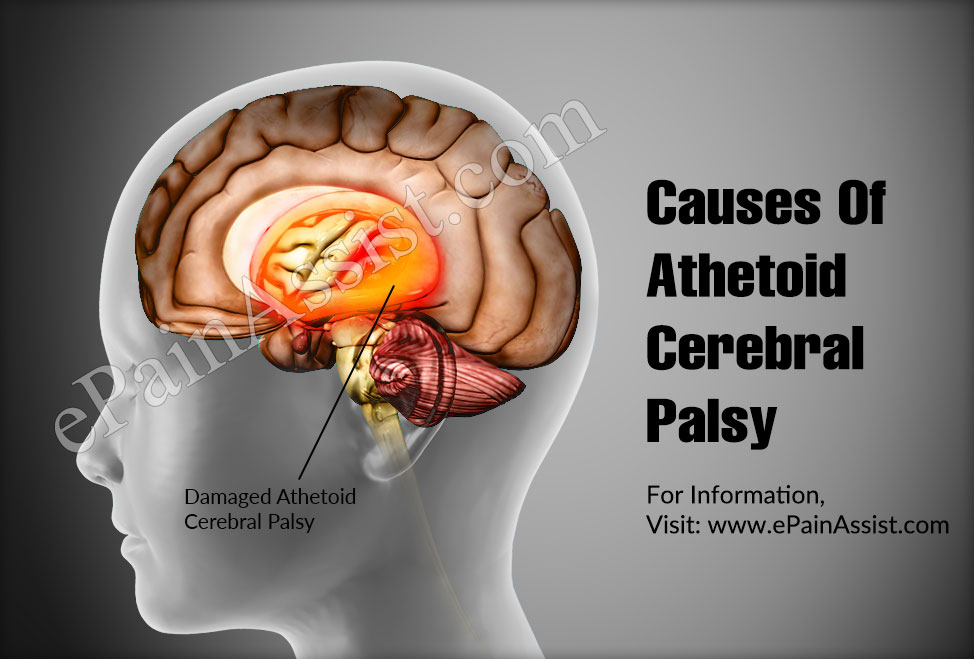 Causes Of Athetoid Cerebral Palsy